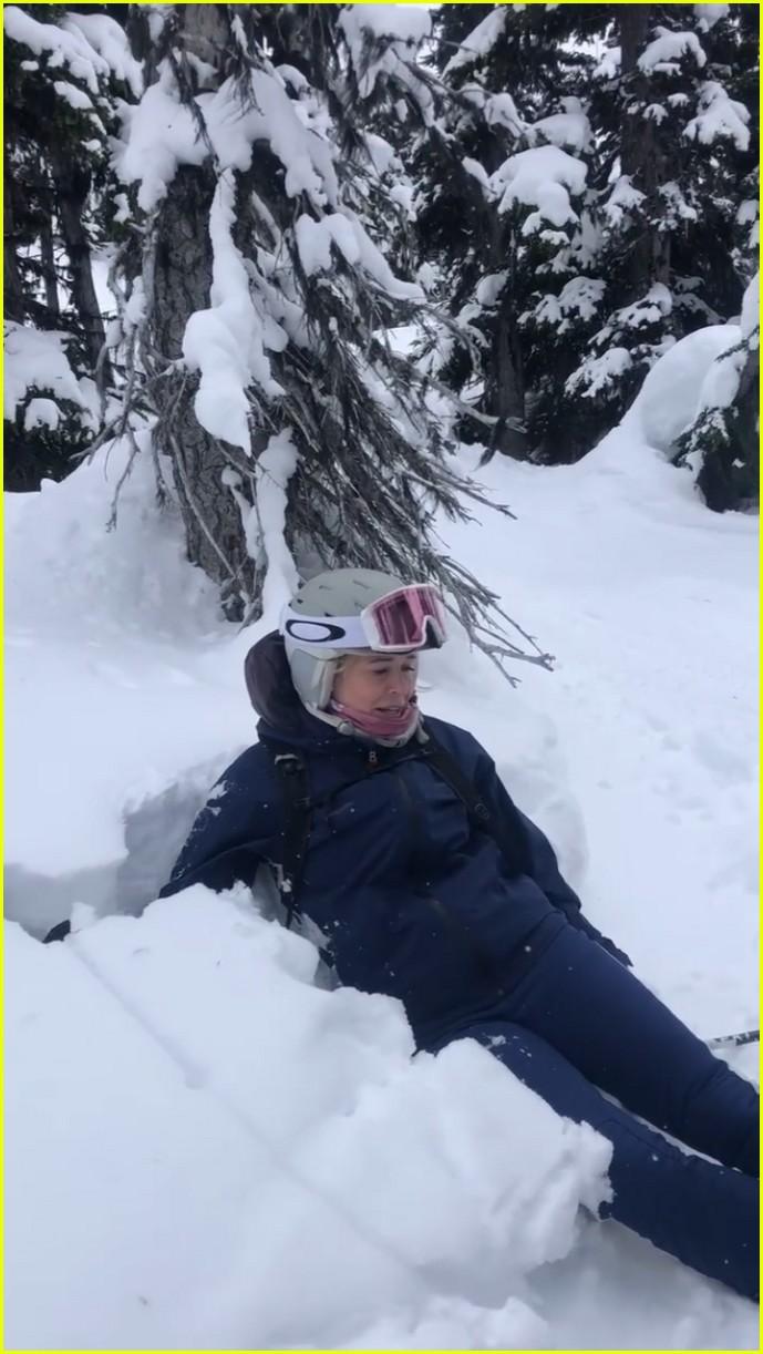 chelsea handler ski injury 034535233