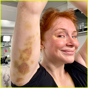 Bryce Dallas Howard Shows Off Her Massive Bruises from 'Jurassic World' Set