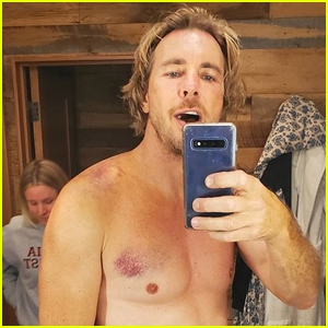 Dax Shepard Says He 'Needs Surgery' After Motorcycle Accident