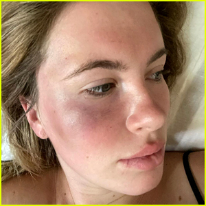 Ireland Baldwin Was Attacked & Robbed by Woman Who Was 'High Out of Her Mind'